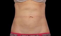 f-01-abdomen-after-1